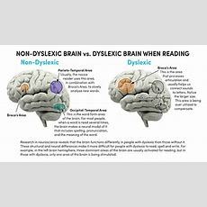 Understanding Dyslexia  Cognitive Development Learning Center