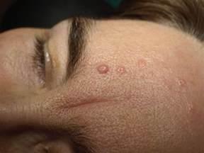 Sebaceous Hyperplasia Treatment