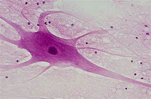 The gallery for --> Multipolar Neuron Histology