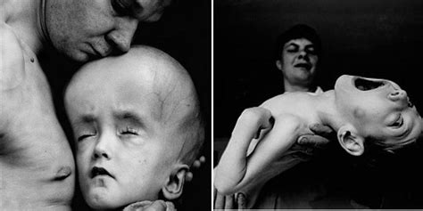 Children Of The Chernobyl Disaster