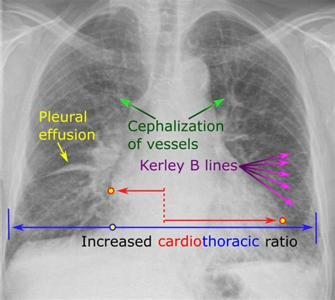 failure heart chest chf congestive cxr signs abnormal radiology radiograph rays ray normal pleural kerley cardiomegaly lines veins upper between