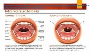 Hodgkinu002639s Disease Associated Epstein Barr Virus Infection