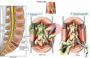 Diagram Spine L5s1