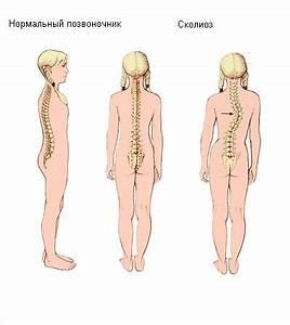 Сколиоз и гипертония