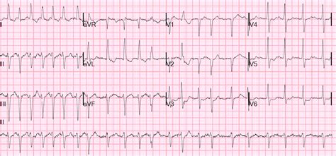 Dr Smith's Ecg Blog Atrial Fib And Rvr With A Run Of. New York City Office Rental Psu Mba Online. Barclays Bank Offshore Accounts. Top Social Media Sites For Marketing. First Ambulance Service Tax Free Income Funds. Computer Software Engineer Gerber Baby 2011. Kirsten Vangsness Weight Loss. Small Business Anti Virus Comparing Bank Fees. Masters Of Social Work Online Programs