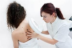 Birthmarks/Pigmented Skin - Apex Dermatology & Skin Surgery Center - Cleveland, OH Dermatology  Skin Cancer Birthmarks - pigmented