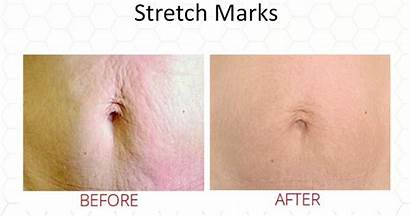 Microneedling Scars Skin Dc Results Types Washington