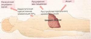 Препараты цирроз печени новейший