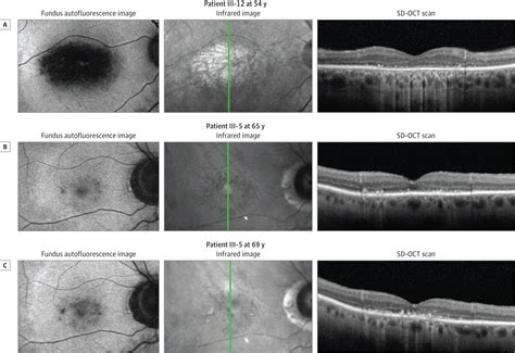 autosomal dominant retinal dystrophy  electronegative