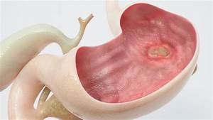 Heal Stomach Ulcers