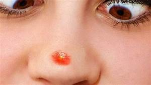 How To Get Rid Of A Pimple In Your Nose  U2022 Top 20 Home Remedies