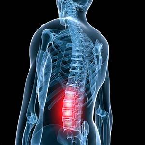 Spinal Stenosis  Cervical And Lumbar Nerve Compression