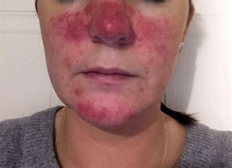 Rosacea Images Rosacea Treatment Clinic Dublin Zest In Swords