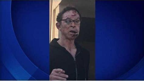 pro wrestler tom magee severely beaten  parking