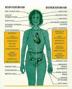 Hyperthyron : définition de hyperthyron