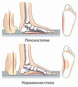 Плоскостопие 3 степени артроз лечение
