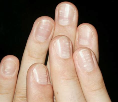 can low vitamin d cause hair beau s lines causes and its treatment deep groove on nails ridges in the nail plate