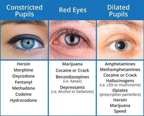 Image Result For Pupil Size Chart Drugs Pharm