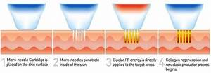 how much is radio frequency treatment