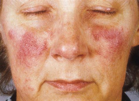rode vlekken na acne