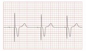File Ecg Pacemaker Syndrome Svg
