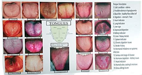 what color should your tongue be what your tongue can actually say about your health