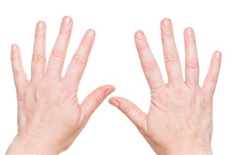 einfache diagnose beschaffenheit der fingernaegel kann auf