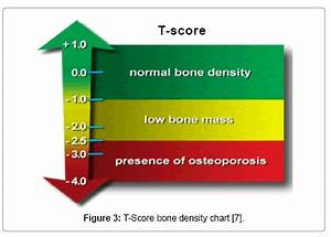 Bone Density Z Score Chart Use Of Finite Element Analysis To Predict Type Of Bone