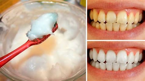 Home Teeth Whitening by Teeth Whitening At Home Dentogums