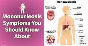 Mononucleosis Symptoms You Should Know About