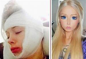 Human Barbie Valeria Lukyanova beaten up by 'haters'