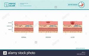 Stomach Erosion And Peptic Ulcer Stages Infographic  Stomach Lining Stock Vector Art