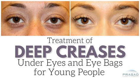 Treatment For Young People With Eye Bags And Deep Creases. Substance Addiction Treatment. Master Degree Program Online. Moving Company Insurance Coverage. Installing Windows In House 4g Lte Networks. Columbus Ohio School Board Contour Body Works. Rheumatoid Arthritis In Ankles. Electrician Roswell Ga Ipage Website Examples. Fresno State Blackboard Aaa Milwaukee Offices