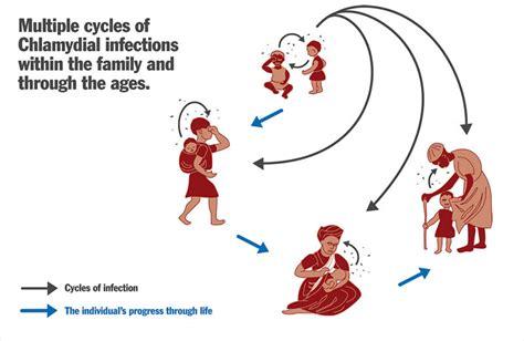 Diagram Of Chlamydium by Community Eye Health Journal 187 Trachoma Teaching Set