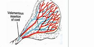 Schematic Representation Of The Velamentous Insertion Of Umbilical Cord
