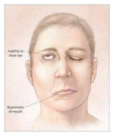 Bell's Palsy Bell's Palsy