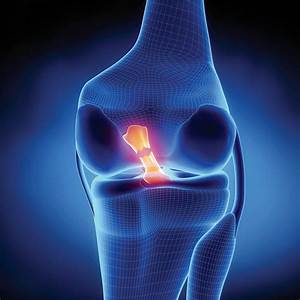 Welcome To Sports Knee Therapy