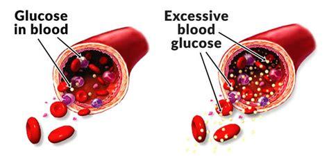 high blood sugar    blood sugar level