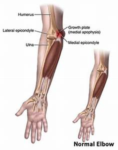 Little League Elbow Syndrome