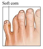 soft corns   toes   remedies corn