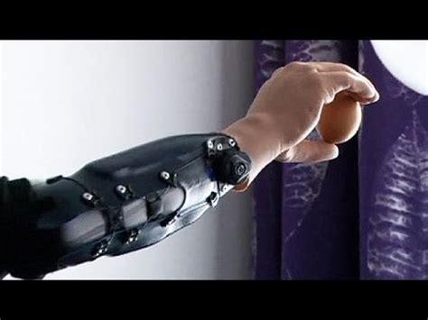 schüssler salze 4 9 10 tres pacientes ya pueden manejar sus manos rob 243 ticas con las se 241 ales de su cerebro
