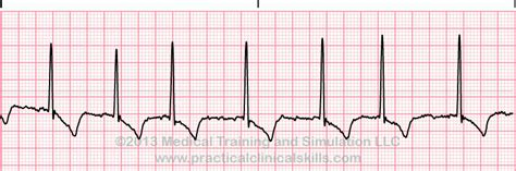 Atrial Fibrillation Ekg Reference. Namecheap Domain Coupon Simple Focal Seizures. Motorhome Rental New Zealand. Compare The Best Credit Cards. Careers Criminal Justice Bulk Email Marketing. Hotels With Jacuzzi In Room In Boston Ma. How To Prepare Fresh Cream At Home. How To Accept Credit Card Payments Online For Free. Private Lenders For Small Business