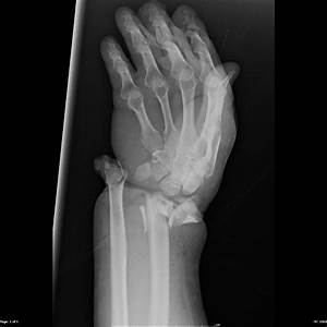 Open fracture dislocation of the wrist | Image ...