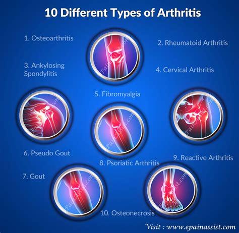 types  arthritisosteoarthritisrheumatoid