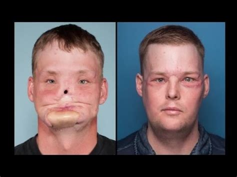 Man Receives Face Transplant After Suicide Attempt Youtube