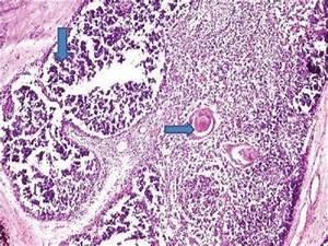 Thymic cyst in the differential diagnosis of pediatric ...
