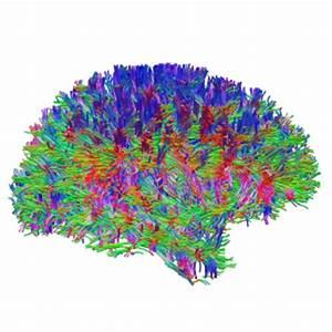Afsterven hersenen