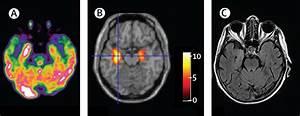 Role of 18F-FDG-PET imaging in the diagnosis of autoimmune ...