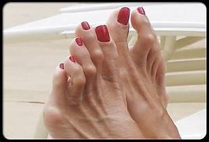 5 Exercises to Relieve Hammer Toes | PA Foot and Ankle ...