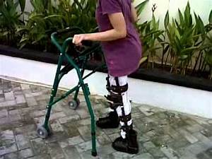 My Sister Walking With Cerebral Palsy Spastic Youtube